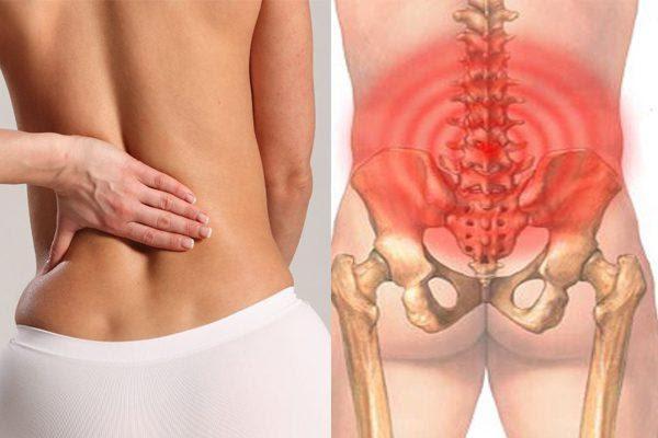 Nhức nhối điều trị đau thắt lưng hoài không khỏi