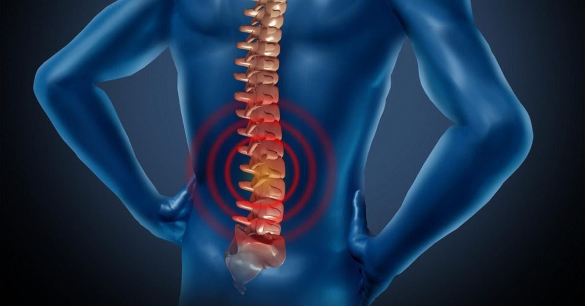 Hạn chế 6 thói quen để điều trị đau thắt lưng hiệu quả