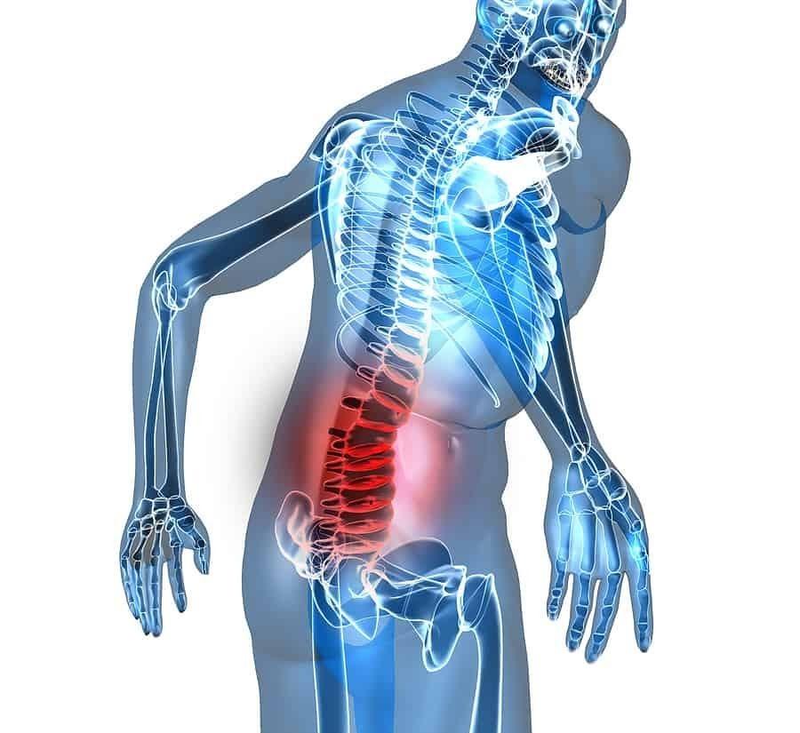 Cách vận động đúng khi điều trị đau thắt lưng